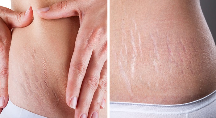 Stretch Mark Removal Inverness